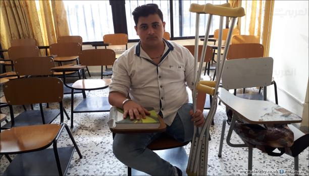 قاسم يمضي في حياته رغم البتر