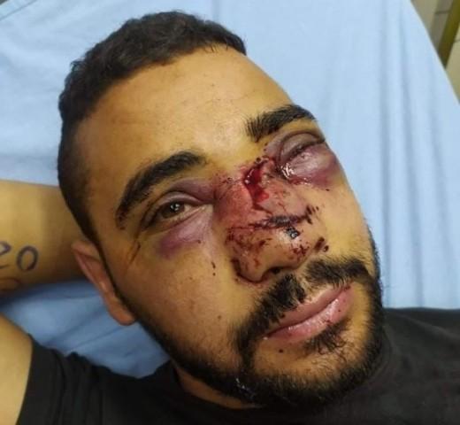 الاحتلال يتسبب بتشوه في وجه الجريح أبو زيتون وكسور حادة بأنفه
